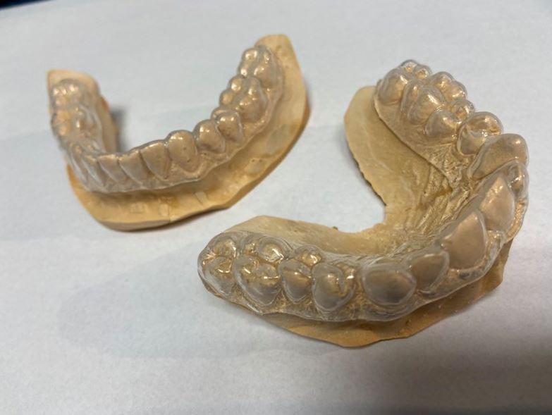 Wybielanie zębów Wesoła